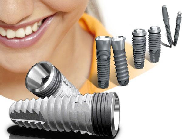 имплантация зубов dlya-chego-nuzhna-implantaciya-zubov