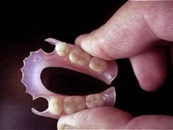 зубной протез с фиксатором