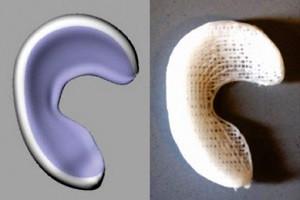 min_3D-printed_implant_meniscus