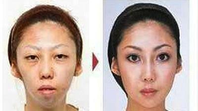 китаянка до и после пластики