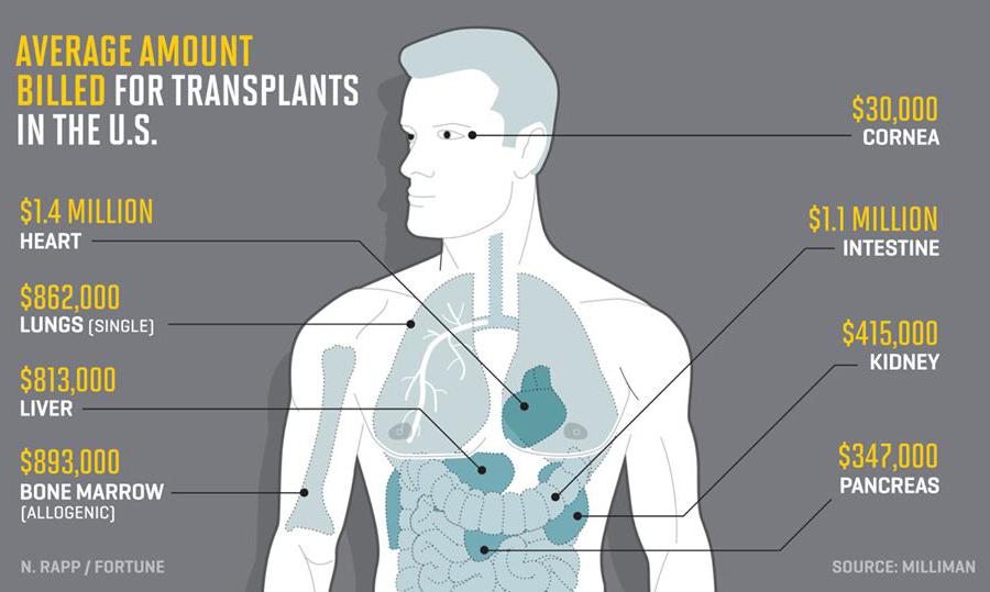 Human-Transplantants