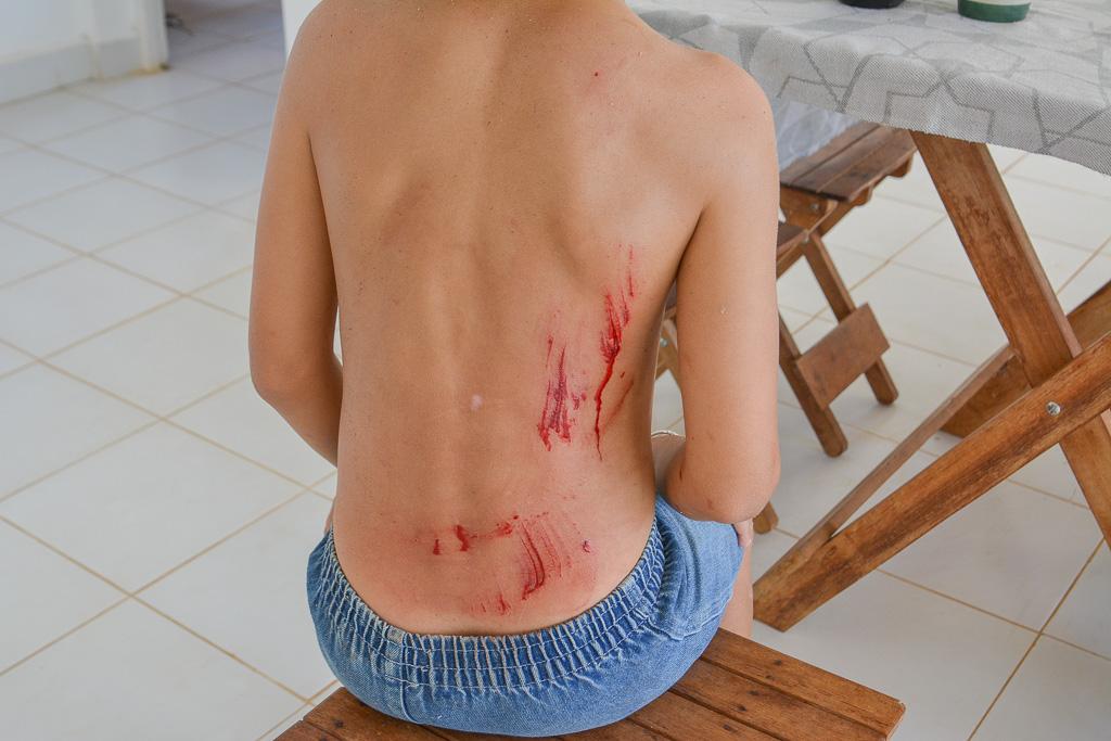 Травма на стройке