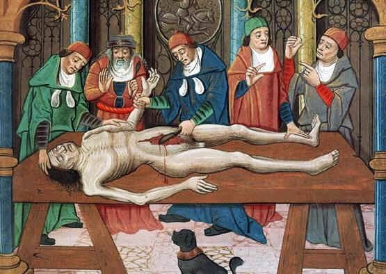 ВСКРЫТИЕ ТРУПА миниатюра 15 век