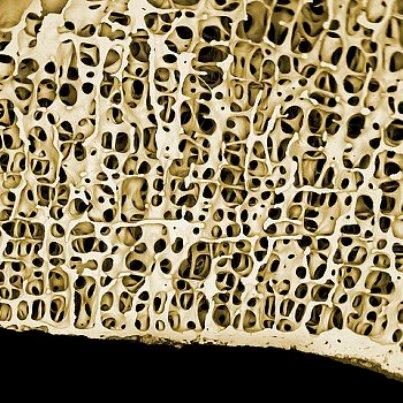сбз2-костная ткань