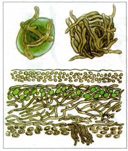 гр-пленение водоросли1