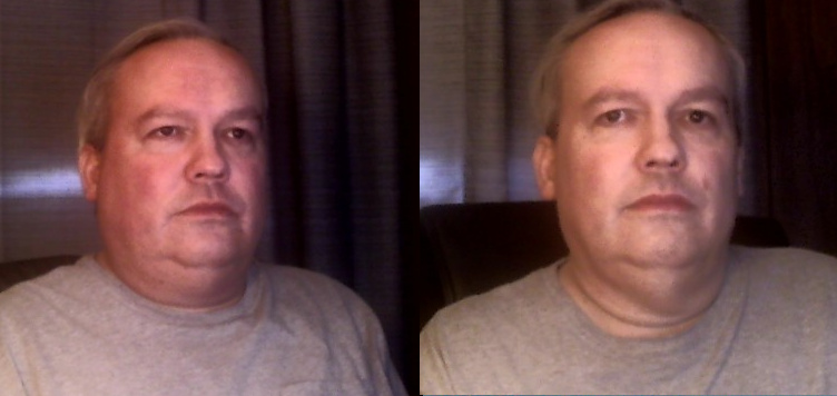 before_after_weight_surgery_01_16_2019.jpg