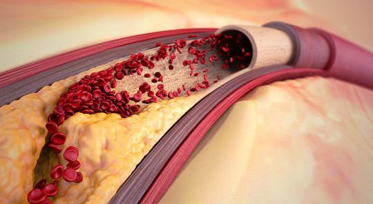 Лецитин полезен при атеросклерозе