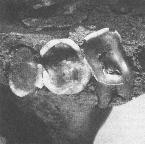 коренные зубы