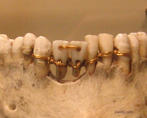 зубной мостик