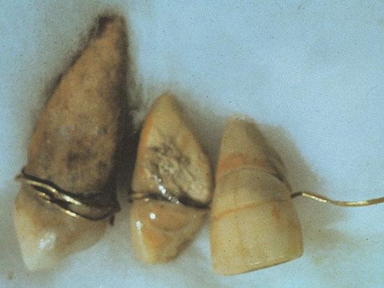 зубной мостик 1