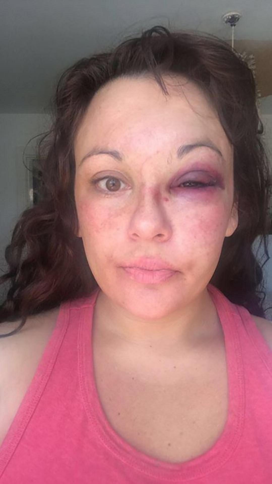 Фото: MEN Media / Дженна после первого избиения, когда её спасла дочь /