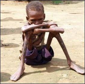 47216761_1249601184_drc_starvation