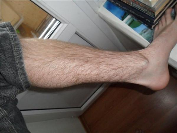 Нога 9 мес