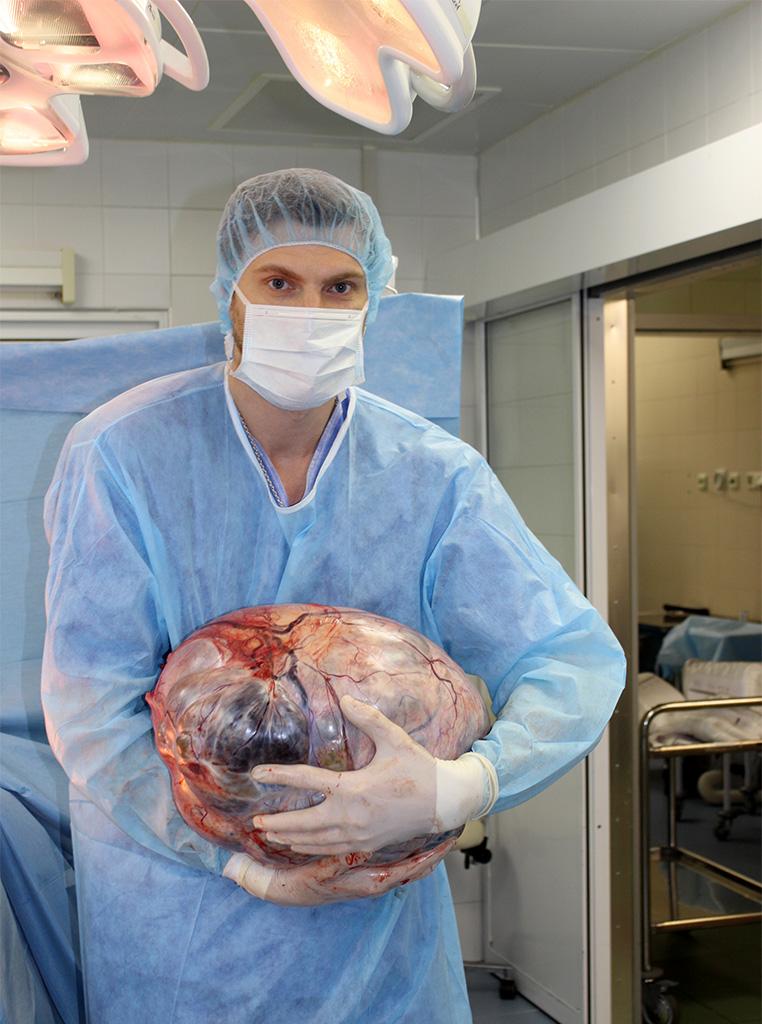 рекордных размеров злокачественная опухоль правого яичника длиной 41 см и весом 21 кг