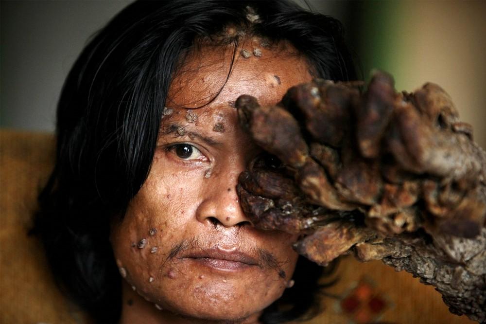 Редкая болезнь которая покрывает тело древесной корой. Современная