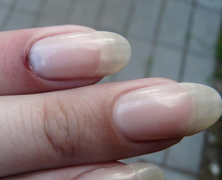 Грибок на пятках трещины и как лечить