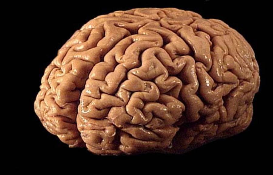 brain1_jpg49835253bc2e222adb7f77036e9eae6d