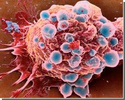 Клетки-4