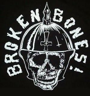 900130 Broken Bones