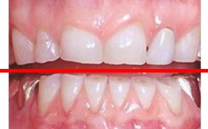 How-to-stop-teeth-grinding-