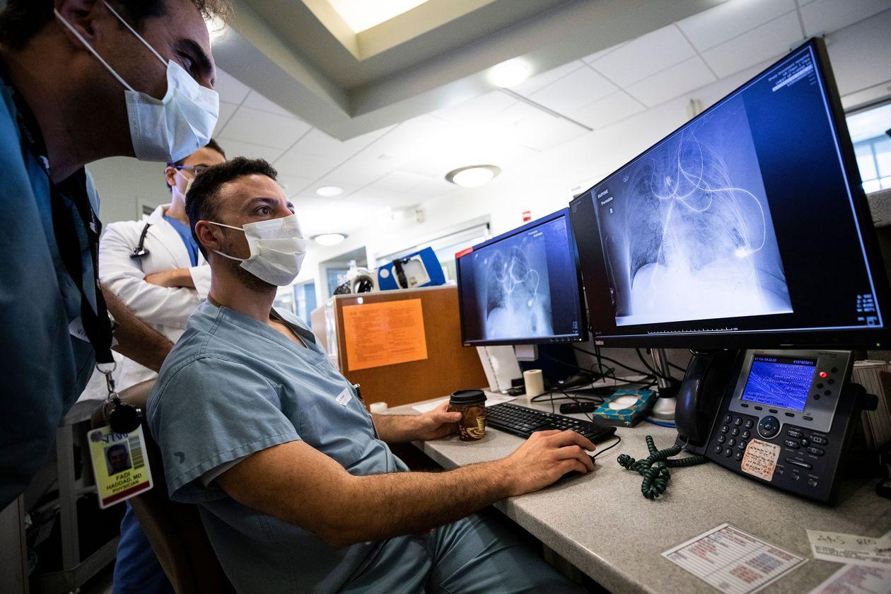 Доктора изучают фотографии легких, пораженных Covid-19, в больнице Sharp Grossmont в Ла-Меса,