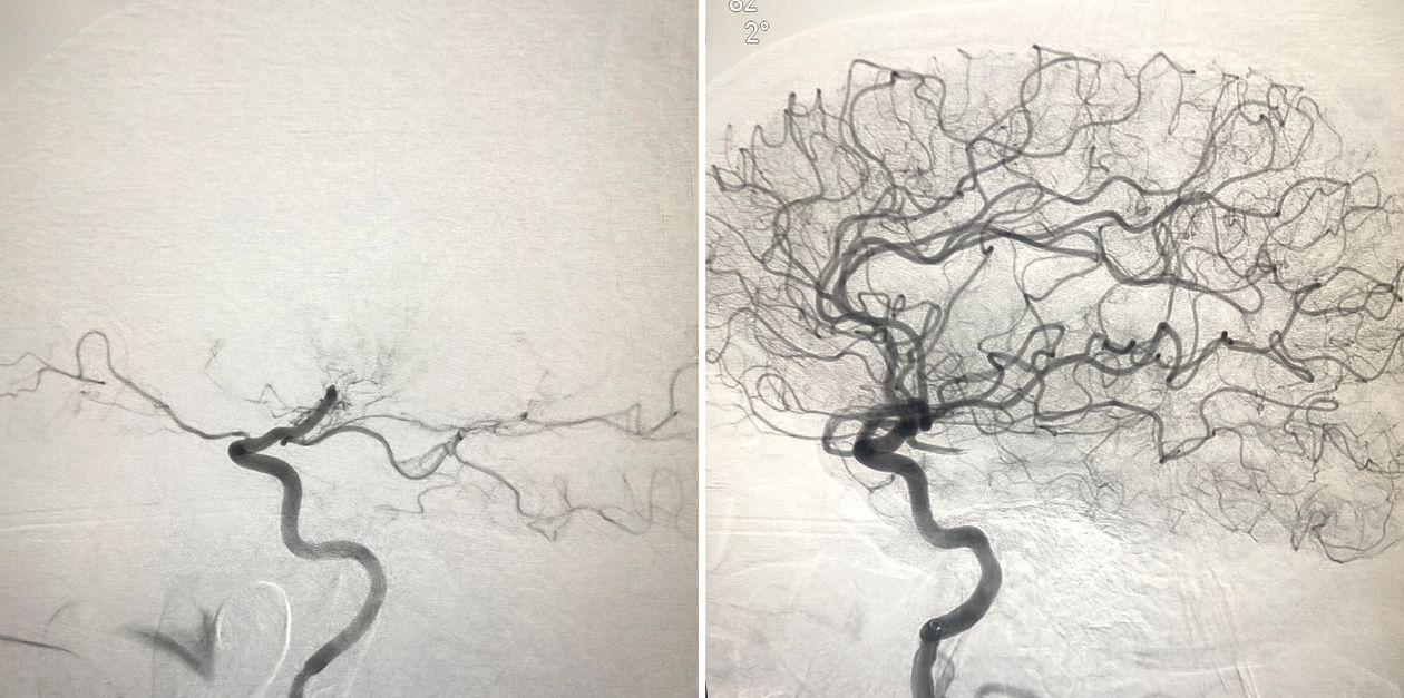 Церебральная ангиография выявляет закупорку сонной артерии, типичную для инсульта большого сосуда, слева и после устранения закупорки - из случая, который доктор Томас Оксли делал последние 12 месяцев.