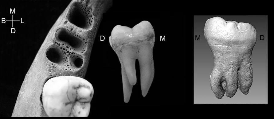 Слева — альвеола от трёхкорневого первого моляра в нижней челюсти. В центре — трёхкорневой первый моляр. Справа — второй моляр нижней челюсти денисовца с тремя корнями.