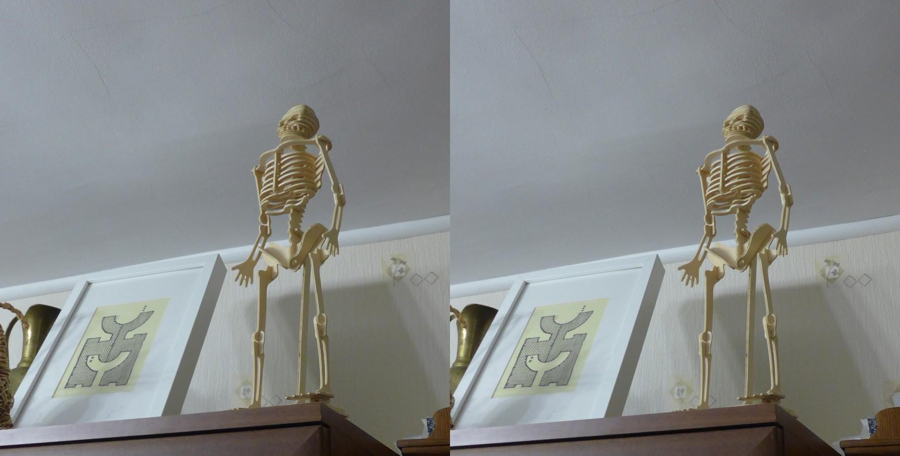x_skelet