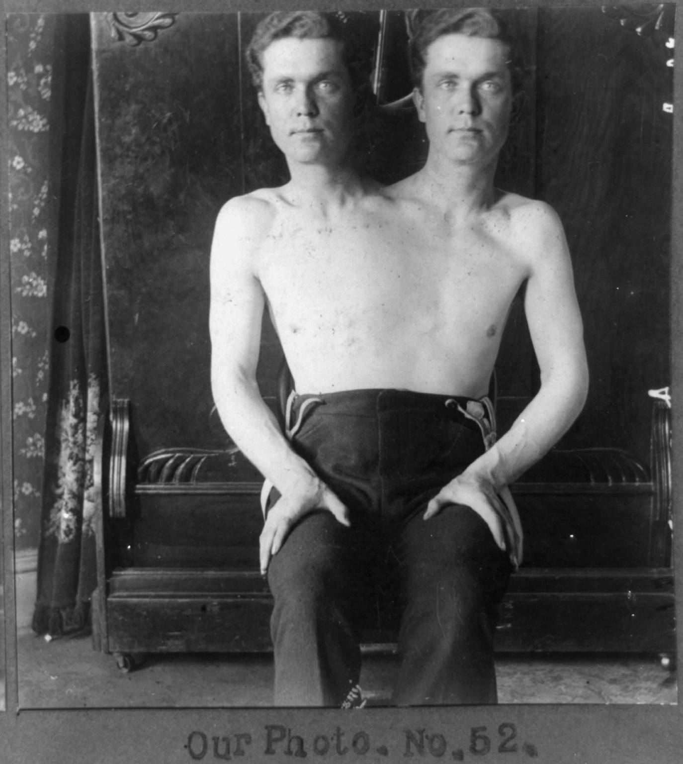 Человек с двумя головами