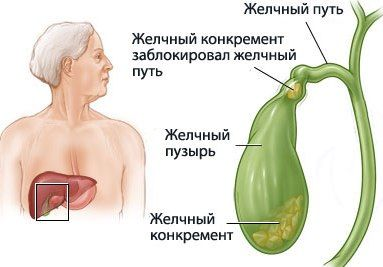 Что значит реактивное печени и поджелудочной железы