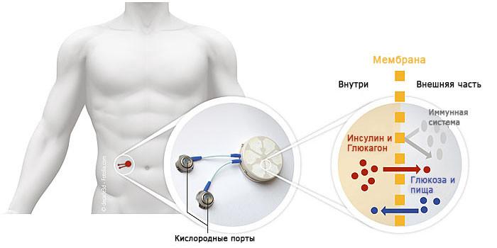 схема установки_rus