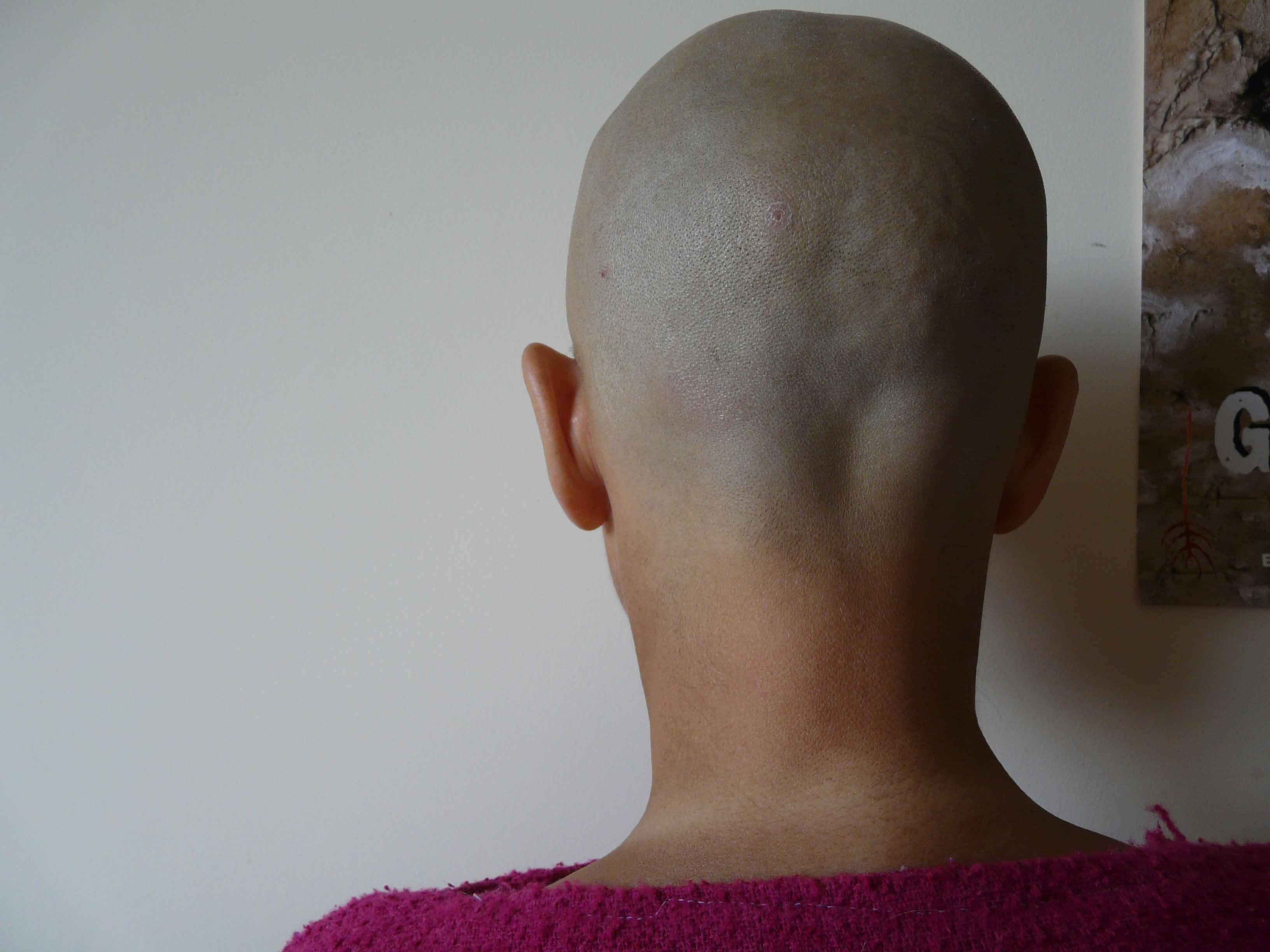 официальному обменному два симметричных шарика на голове сзади онлайн-тесты