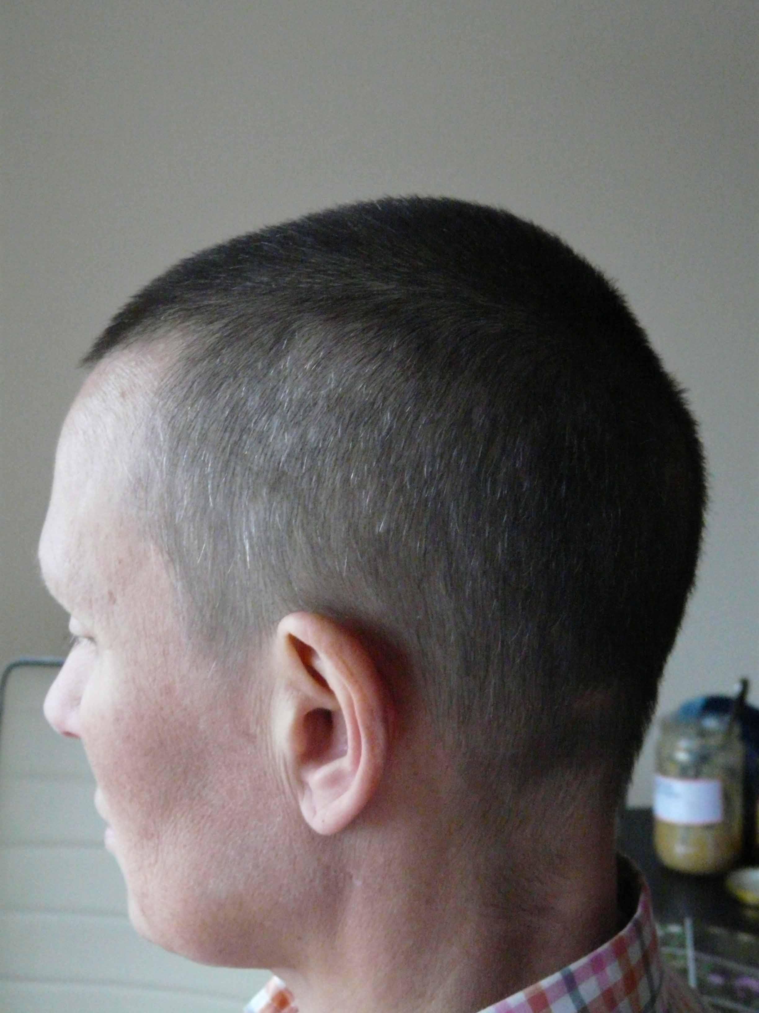 Химиотерапия и волосы Что нужно знать когда предстоит