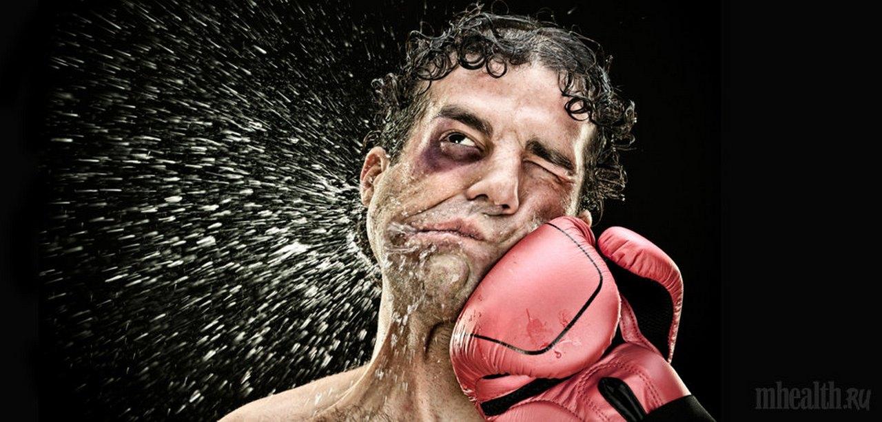 boks-udar