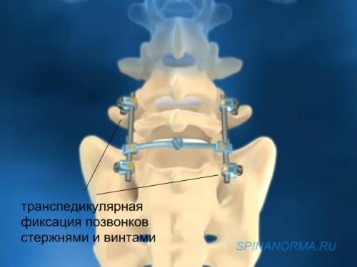 Заболевания при которых болит спина