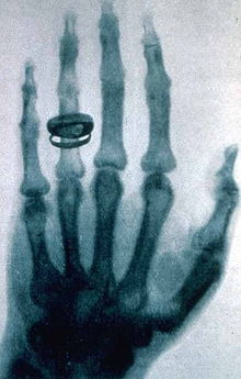 X-ray_by_Wilhelm_Röntgen_of_Albert_von_Kölliker's_hand_-_18960123-02