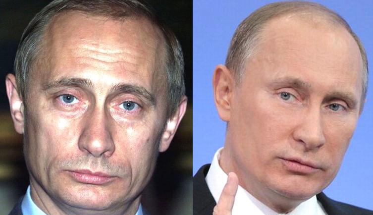 Какие пластические операции делал Владимир Путин: фото до ...
