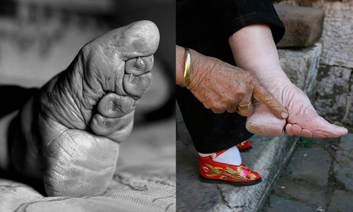 """Деформированные стопы в Китае называли """"лотосовые ножки"""""""