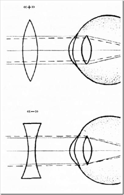 Как определяется минус зрения