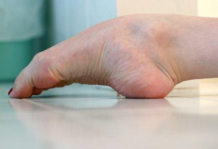 Цена красоты: ноги балерины