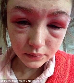 Как выглядит аллергия на краску