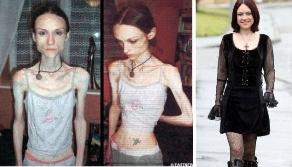 Победившие анорексию