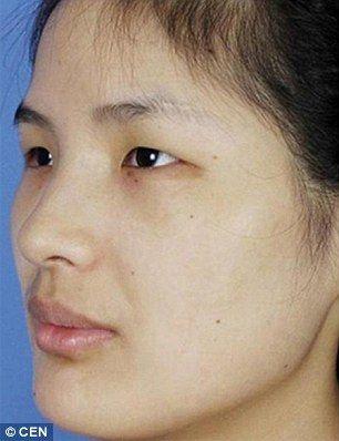 Как выглядят азиатки до пластических операций и что они исправляют чаще всего
