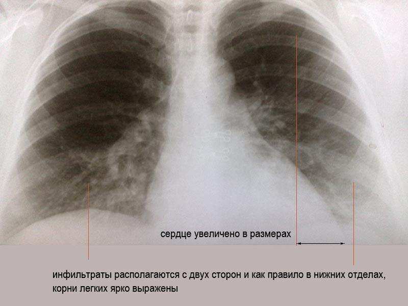 Пневмония Вирусная фото