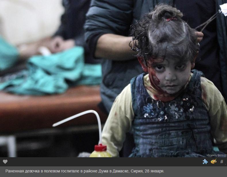 раненная девочка в полевом госпитале Дамаска Сирия