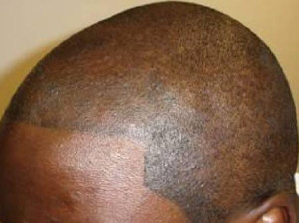 Тату на голове вместо волос