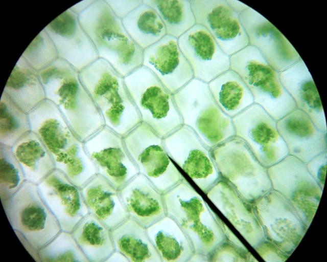 Plant Cells - normal and plasmolyzied - BioTexan