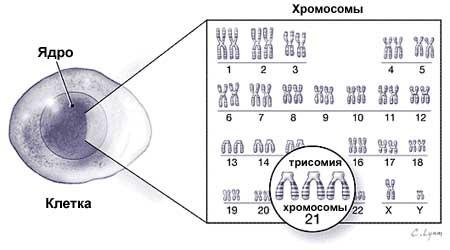 trisomia-21-hromosomy (ru)