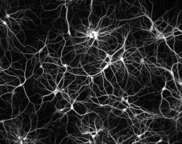 Структура головного мозга