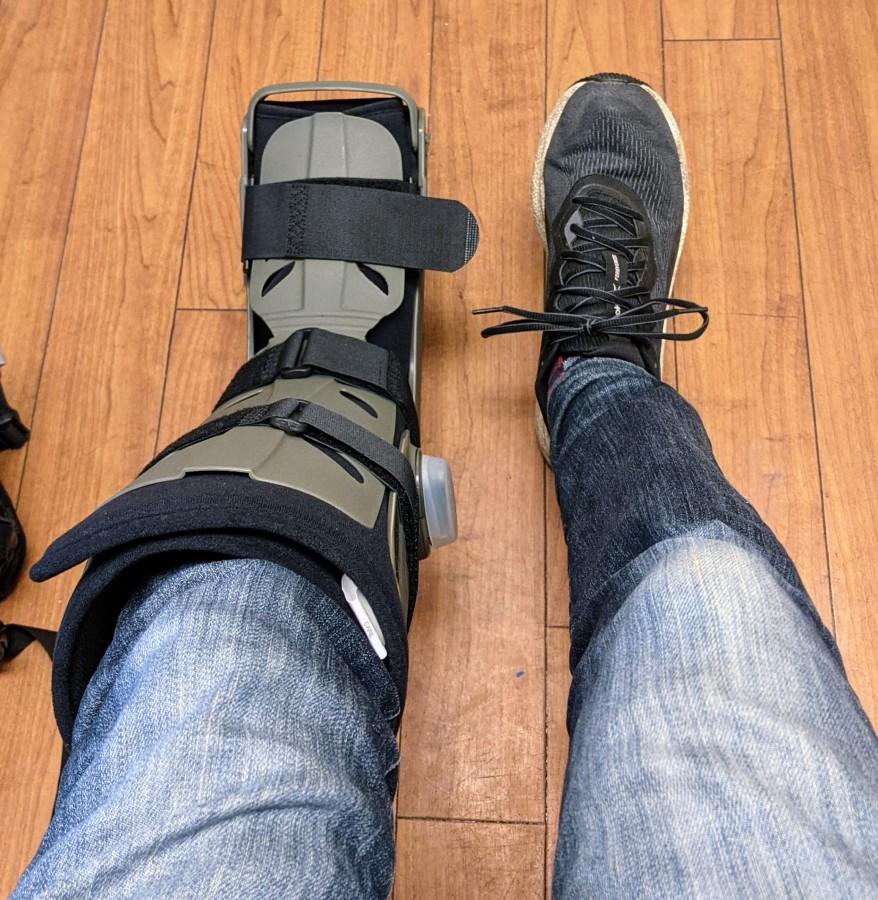 "Two legs, left leg in green air-cast ""boot"", right leg wearing black tennis shoe"